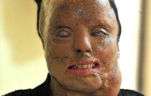Pomsta za odmítnutý sex: Kyselina jí znetvořila obličej, přesto vystoupila v televizní show!