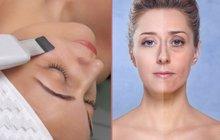 Nepřekonatelný ultrazvuk! Omladí, zredukuje vrásky a odstraní akné