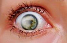 Varování lékařů: Slunce způsobuje rakovinu očí!