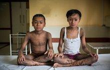 Sourozenci trpí vzácnou kožní nemocí, na kterou není lék: Hadí děti!
