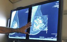 Nové testy odhalí více nemocí: Češi mohou dříve na preventivní vyšetření!