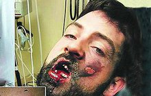 Krvavý výbuch e-cigarety odneslo 7 zubů!