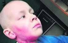 Chlapec z Jirkova bojuje s rakovinou: Nádor Matyáška (11) už dusil!