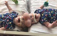 Siamská dvojčata: Jako dárek, dostali život!