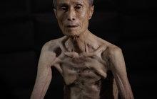 Přežil Nagasaki,  zabila ho rakovina!