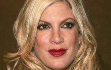 Oteklá Donna z Beverly Hills: Hlava jako meloun