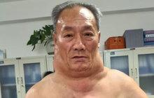 Když to člověk přežene s alkoholem, druhý den má kocovinu a na pití nemá ani pomyšlení. Ne však Číňan Chung Šu (53). Ten pil 30 let litr tvrdého denně! Za krkem se mu však neusadila »opice«, ale udělaly se mu kolem něj obří tukové nádory!