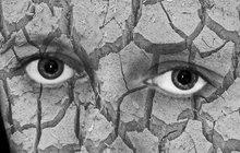 Jde o poruchu tvorby slzného filmu. Oko tvoří buď malé množství slz, nebo vslzném filmu chybí některá ze složek – olej, voda nebo hlen. Oko je tak nedostatečně chráněno a vysušuje se. Potíže se mohou vyskytnout vkaždém věku, nejčastěji však u žen vobdobí přechodu.