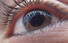 Nejčastější oční vada (nazývá se také myopie), projevující se špatným viděním do dálky. Vsoučasnosti jí trpí téměř třetina populace. Hodnoty krátkozrakosti se označují v dioptriích se znaménkem minus, do -3,00 dioptrie se jedná okrátkozrakost lehkou, nad -6,75 dioptrie se již jedná o její těžkou formu.