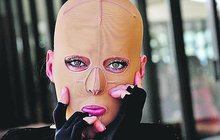 Před šesti lety ji zfetovaná žárlivka polila lihem a zapálila. Australanka Dana Vulin (32) utrpěla děsivé popáleniny na dvou třetinách těla a sama se připodobnila k Frankensteinovu monstru. Po více než 200 operacích je ale znovu krásná a šťastná a útočnici odpouští!