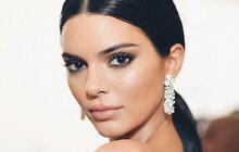 Kendall Jenner (22): Její dobrman porafal dítě!