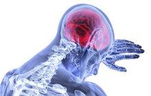 LEXIKON ZDRAVÍ: Zánět mozkových blan - Meningitida