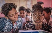 Vlkodlaci bývají obvykle divocí a krvelační, prostě škodná. Tenhle však chce »pomáhat a chránit«. Lalit Patidar (13) má zvláštní chorobu, ale jinak je to normální indický kluk.