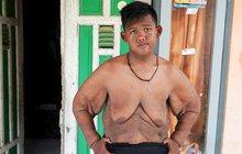 Nejtlustší chlapec světa (13): Zhubl už přes metrák!