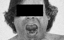 Ukazováček levé ruky ukousl v hospodské rvačce v červnu 1900 notně opilý zámečnický pomocník Antonín P. kloboučnickému mistrovi Františku P. Tomu se do rány dostala infekce a lékaři mu museli amputovat levé předloktí. Marně – František P. zemřel.