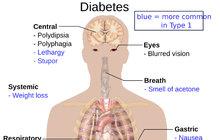 Diabetes neboli cukrovka je vsoučasné době velmi rozšířené civilizační onemocnění, které postihuje populaci napříč generacemi. Zatímco u dětí a mladších dospělých je častější diabetes prvního typu, snímž se pacient narodí, u lidí středního věku a starších se obvykle rozvíjí diabetes druhého typu, kterému se ve většině případů lze vyhnout zdravou životosprávou. Vtomto letošním prvním Lexikonu zdraví se dozvíte, jak můžete cukrovku rozpoznat, jaké další rozdíly jsou mezi prvním a druhým typem nemoci, kdo je onemocněním nejvíce ohrožen a co udělat pro to, aby se nám tato choroba zdaleka vyhnula. Co radí diabetoložka?