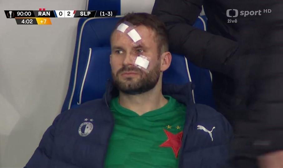 Zraněný Ondřej Kolář na lavičce Slavie na konci zápasu proti Rangers