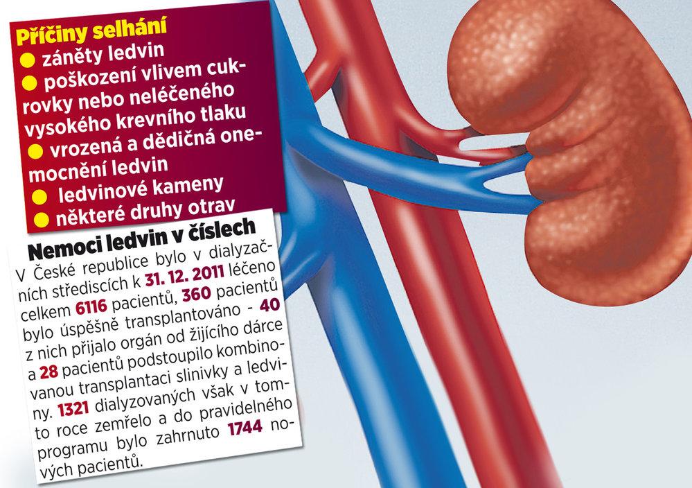 Nemoci ledvin