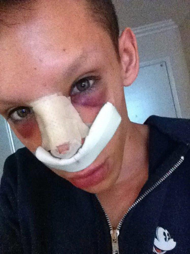Vinny Ohh si nechal upravit nos.