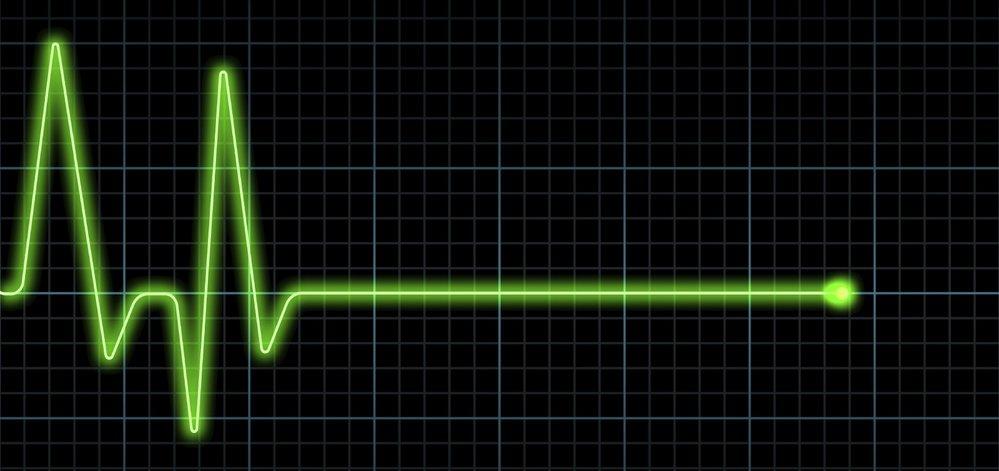 Když se na monitoru objevila rovná čára, všem zatrnulo.