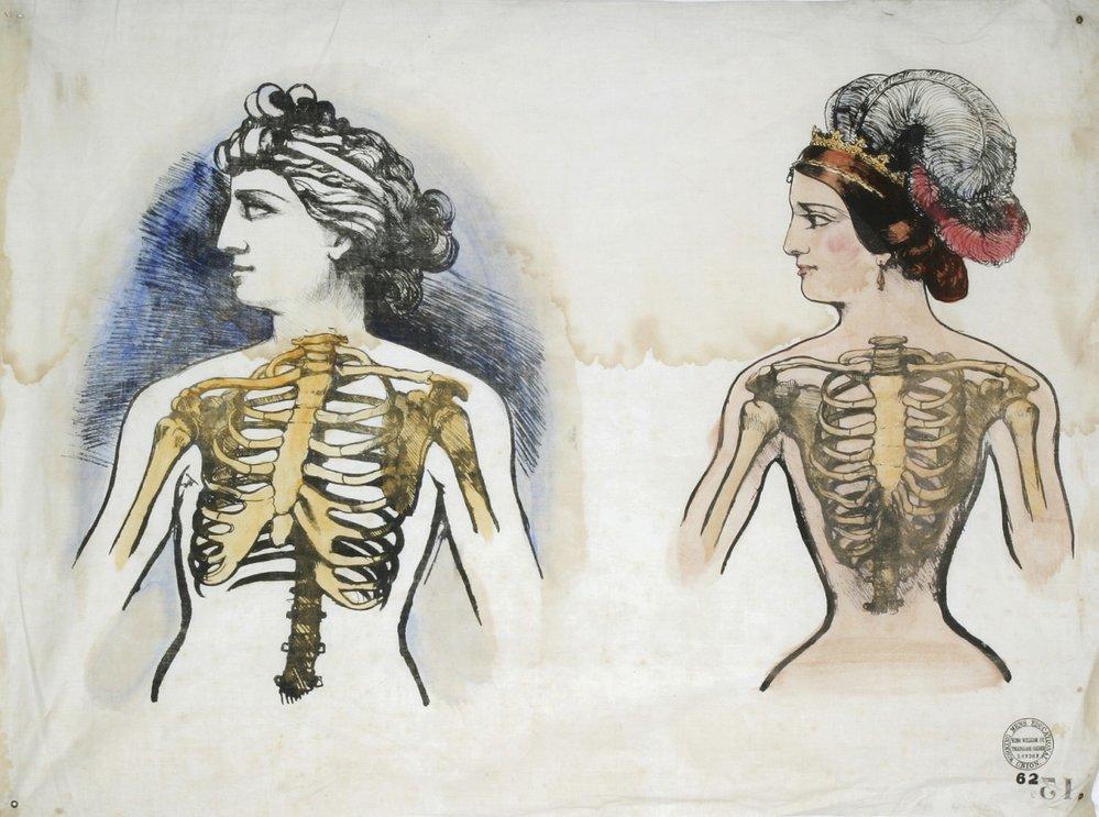 Didaktická tabule představující škodlivost korzetů, ze sbírek Národního muzea