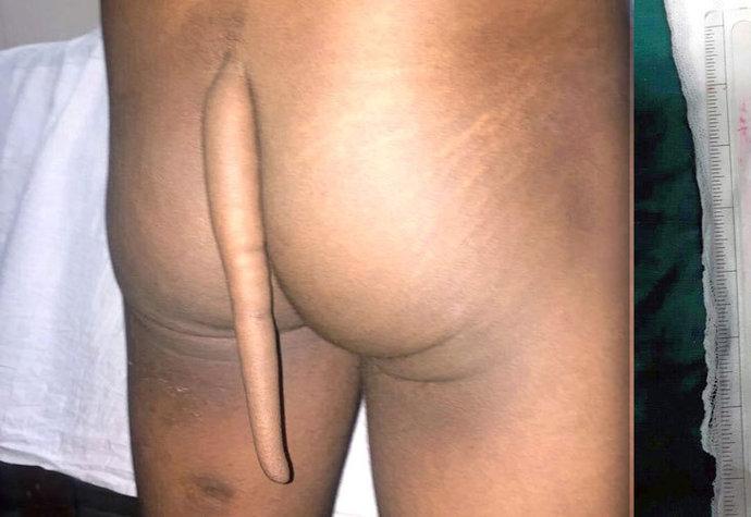 Indickému chlapci rostl nad zadkem ocas. Když mu ho lékaři odstranili, měřil skoro 20 centimetrů.