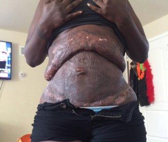 Po porodech dvou dětí chtěla své tělo vylepšit plastikou. Lékaři ji ale totálně zpackali!