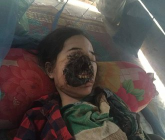 Šla k zubaři a přišla o půlku obličeje. Co se stalo?