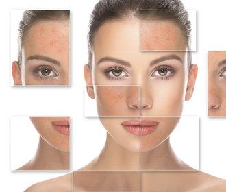 Rosacea není akné: Jak ji poznat a jakou používat kosmetiku?