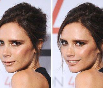 Celebrity a jejich vady na kráse: Jak by vypadaly, kdyby je neměly?