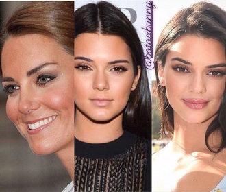 Instagram odhaluje plastiky slavných: Od Kendall Jenner po vévodkyni Kate!