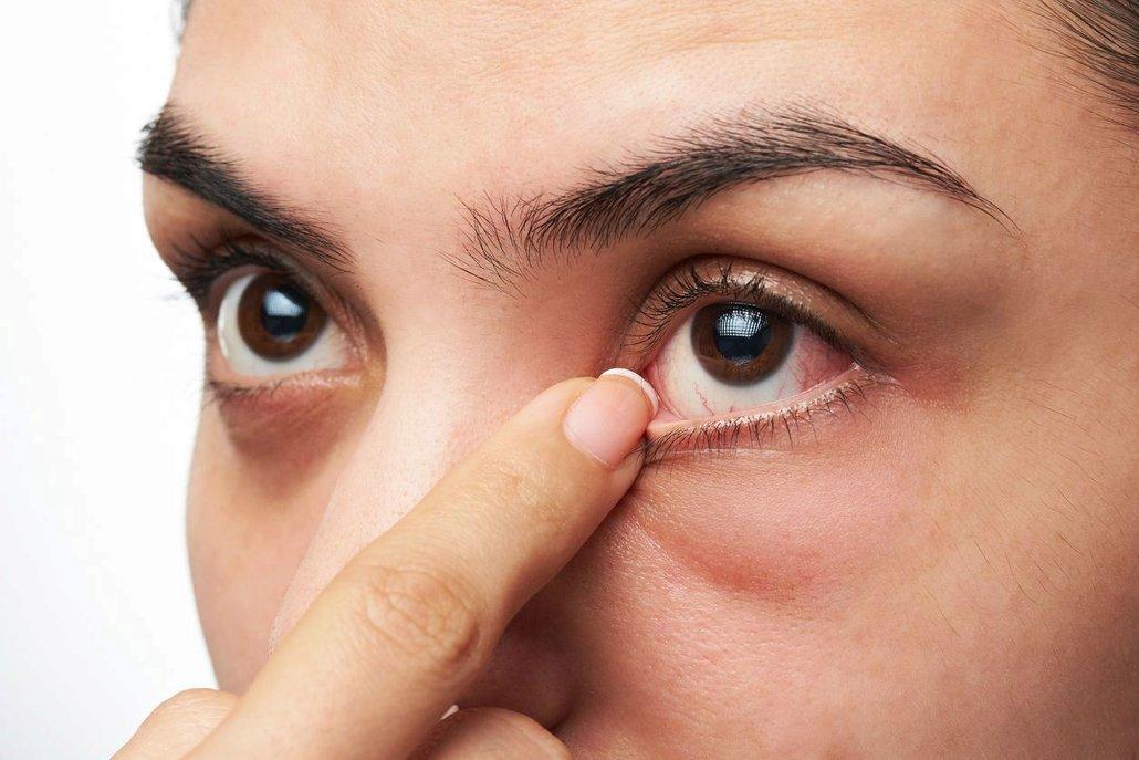 Červené oči mohou být důsledkem špatné hygieny, ale i vážného onemocnění