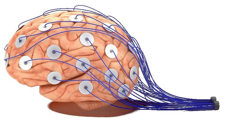 Jak je na tom váš mozek?