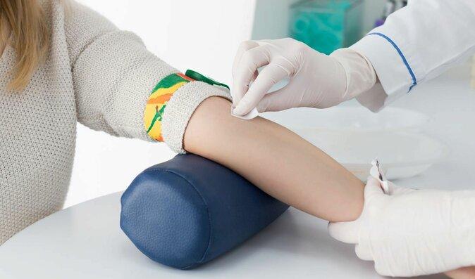 Rychle Testy Krve A Moci V Ordinaci Co Se Z Nich Dozvite Moje Zdravi