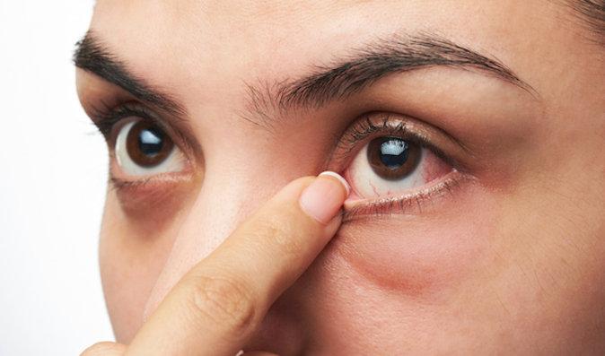 Jak zvítězit nad pálením a řezáním očí
