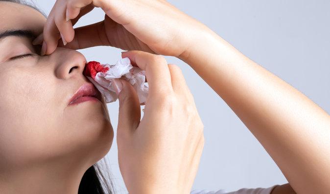 Časté krvácení z nosu: Kdy je to v pořádku a kdy je čas navštívit lékaře?