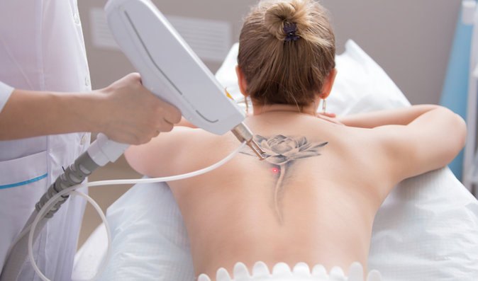Mýty o odstranění tetování. Jaké máte možnosti? A bolí to?