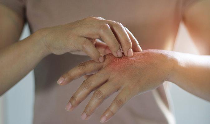 Naděje pro nemocné s lupénkou: Lékaři zkouší novou experimentální léčbu