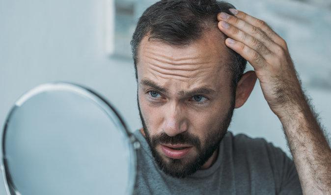 Alopecie: Kolik lidí v Česku žije bez vlasů, obočí a řas. Co jim pomůže?