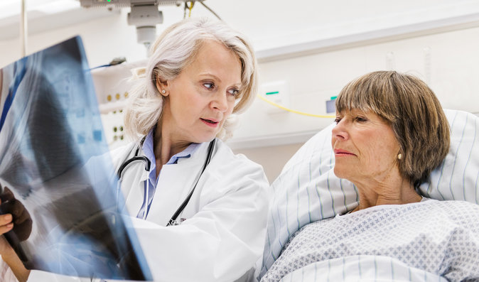 Rakovina plic nezačíná jen kašlem. Jak poznáte, že je zle?