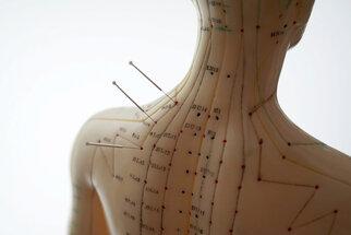 Akupunktura se využívá nejen k léčbě, ale také diagnostice a prevenci