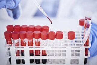 Na co si dát pozor při vyšetření krve a moči. Škodit může vitamin C i málo vody