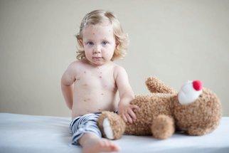 Velký přehled nemocí s vyrážkou u dětí: Jak poznat neštovice, ekzémy nebo smrtelnou meningitidu?
