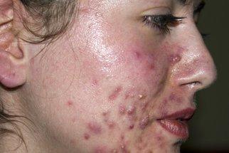 Tomu neuvěříte: Akné prozradí choroby, které vás trápí