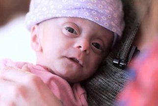 Osvojili si miminko bez mozku. Až jej uvidíte v náručí nových rodičů, rozpláče vás to!