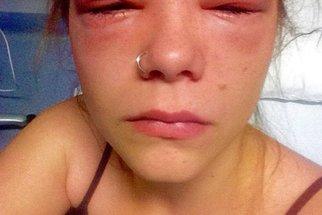 Barva na obočí jí málem stála zrak a možná i život. Co pomohlo?