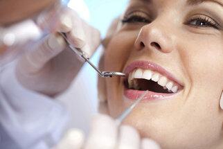 Zubní implantáty: Průvodce operací krok za krokem