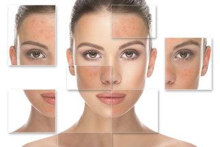 Rosacea neboli růžovka obličeje: Jakou zvolit kosmetiku a jak ji léčit?