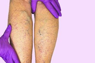 Mravenčení končetin: Kdy jde o příznak křečových žil?