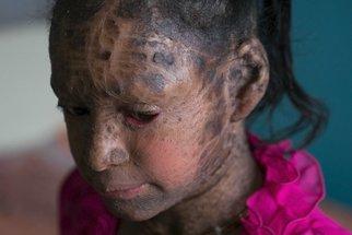 Nemůže vyjít ven. Dívka trpí děsivou kožní poruchou